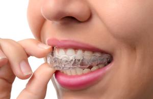 dentist  dentistry  Florence, ky  Dr. Ron Elliott braces  Invisalign straight teeth  orthodontist  crooked teeth