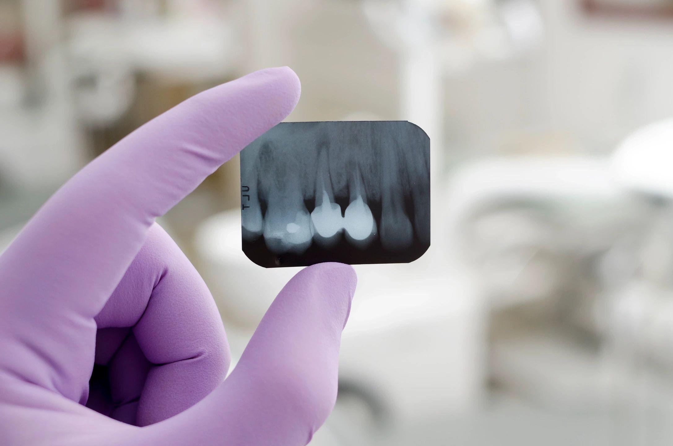 dentistry  dentist dr. ron Elliott  Florence, ky  northern Kentucky  Cincinnati  veneers  botox  tmj  dermal fillers  invisalign  crowns  fillings  cleaning